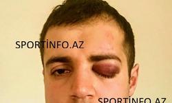 https://www.sportinfo.az/idman_xeberleri/sumqayit/76358.html