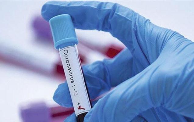 DİQQƏT! Koronavirusun aktivləşdiyi temperatur açıqlandı