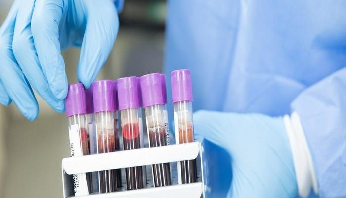 Koronavirus müəmmaları: Yenidən yoluxmaq mümkündür?