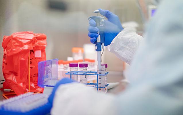 Azərbaycanda 5 nəfər öldü, 168 nəfər koronavirusa yoluxdu