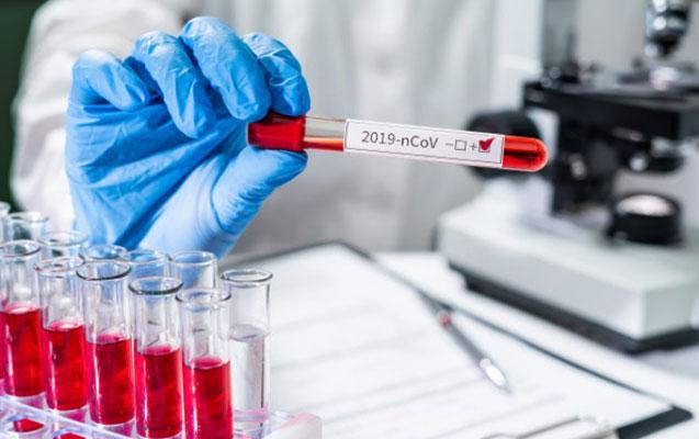 323 nəfərdə koronavirus aşkarlandı, 5 nəfər vəfat etdi