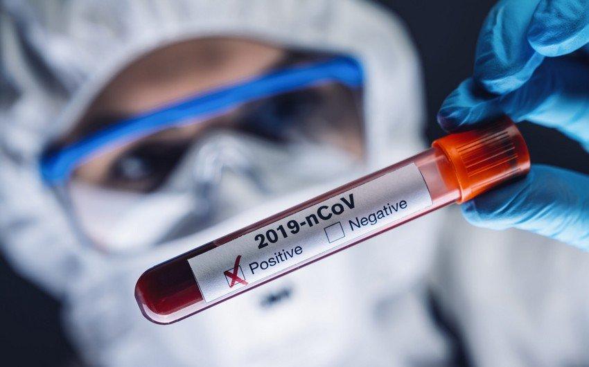 Azərbaycanda koronavirusa 402 yeni yoluxma qeydə alındı