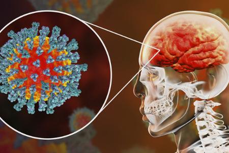 Koronavirus beyinə necə təsir edir? - ARAŞDIRMA