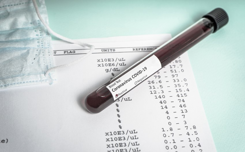 Azərbaycanda daha 885 koronavirusa yoluxma - 22 nəfər öldü